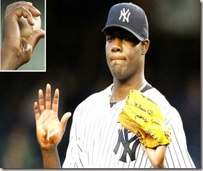 Michael Pineda pine tar on hand
