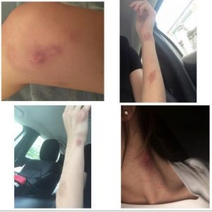Ezekiel_Elliott_s_Girlfriend_Tiffany_Thompson_Posts_Photos_Of_Bruises__Claims_She_s_A_Victim_Of_Domestic_Violence__Update_ 2